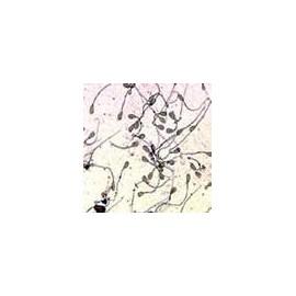 15902 Hongos, líquenes, musgos (12 preparados)